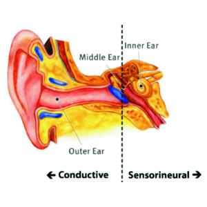 Ear Pic